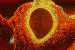 Растворимый стент для артерий сердца исчезнет, выполнив свою работу