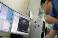 Риск преждевременных родов лучше оценивать с помощью МРТ, а не УЗИ