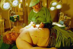 Гастрошунтирование резко снизит расходы на лечение диабета второго типа