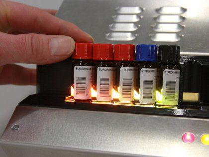 Названы важнейшие анализы крови для людей, перешагнувших через 50 лет