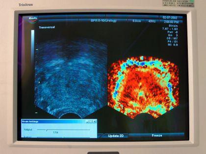 Рак простаты скоро будут лечить новыми генетическими лекарствами