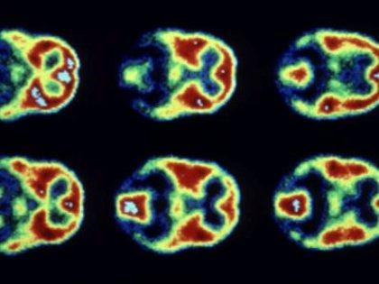 Открытие структур двух белков поможет лечить рак за счет кислородного голодания опухолей