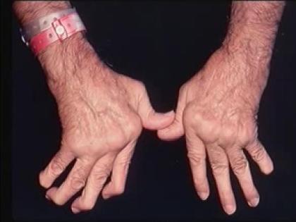 Анализ генных мутаций поможет подобрать самый эффективный способ лечения артрита