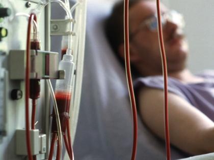 Зимой пациенты, проходящие через гемодиализ, умирают чаще всего
