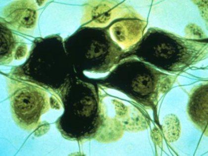 Короткие теломеры помогают организму человека побеждать рак