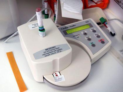 Риск тромбов после резекции легких у пациентов с раком можно определить с помощью специальной модели